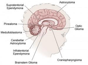 peds-brain-tumors-lg