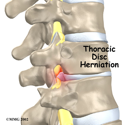 thoracic_herniation_intro01